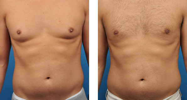 gynecomastia-surgery-before-after