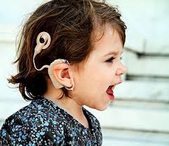 All You Need To Know About The Cochlear Implant In India